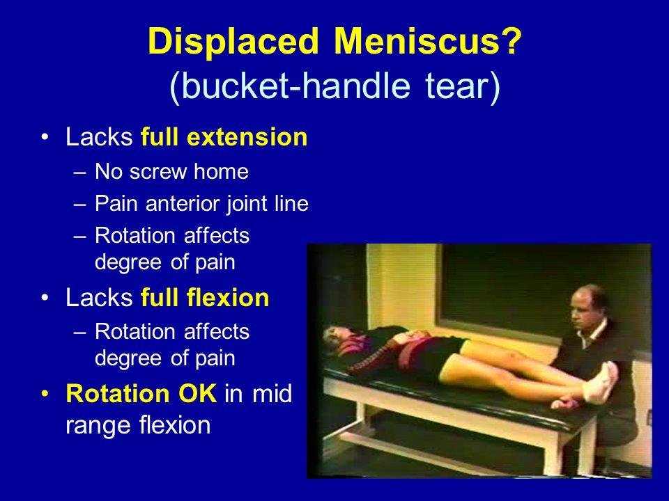 Displaced Meniscus.