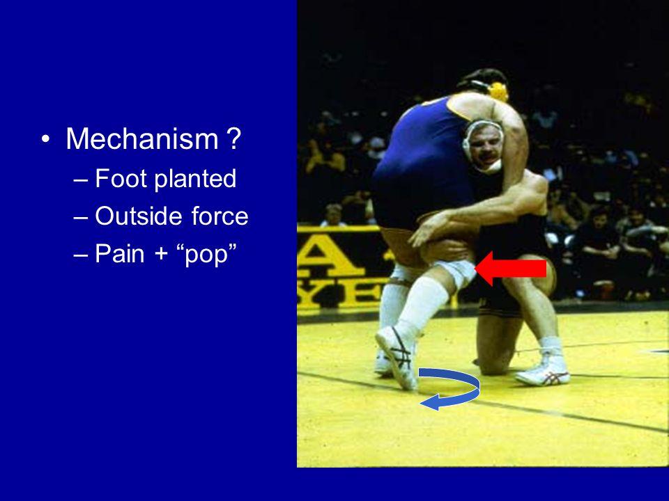 Sprains (ligaments)