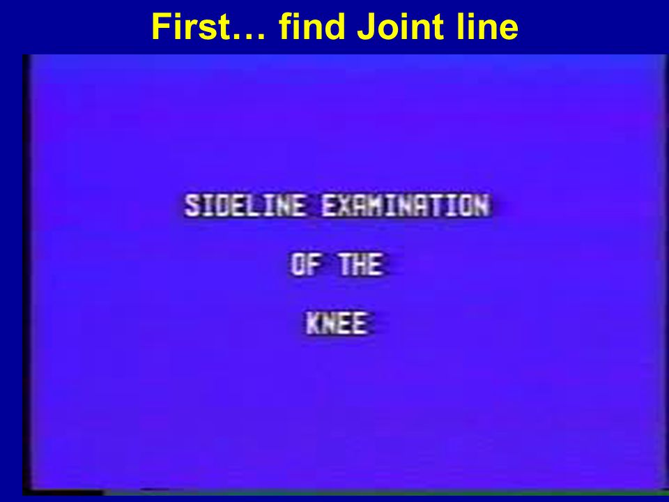 First… find Joint line