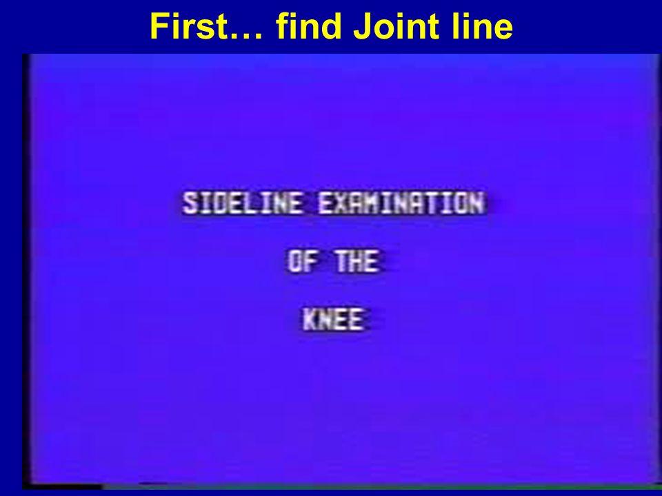 Hughston Laxity Classification Grade I – 1-4 mm laxity Grade II – 5-9 mm laxity Grade III – >10 mm laxity (soft endpoint) »Hughston JC, Andrews JR, Cross MJ, Moschi A: Classification of knee ligament instabilities.