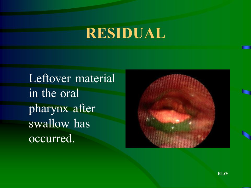 RESIDUAL Leftover material in the oral pharynx after swallow has occurred.