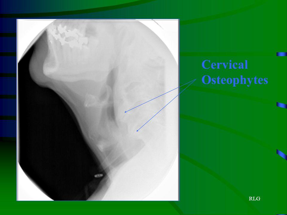 RLG Cervical Osteophytes