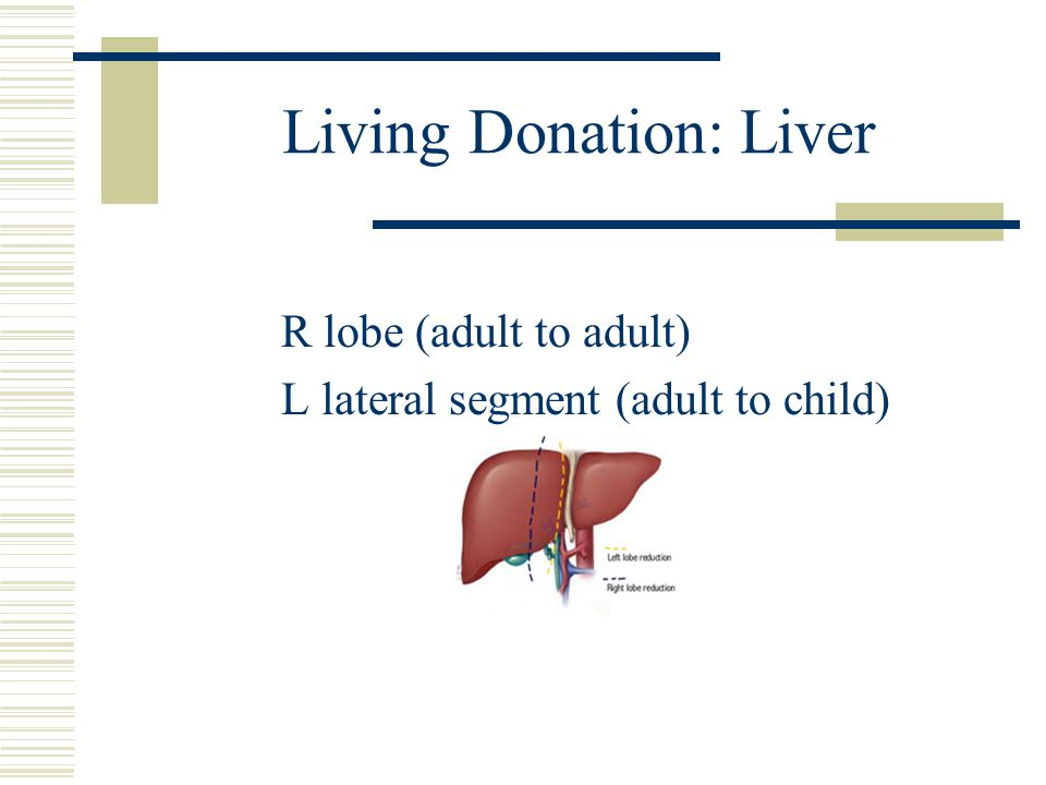 Living Donation: Kidney