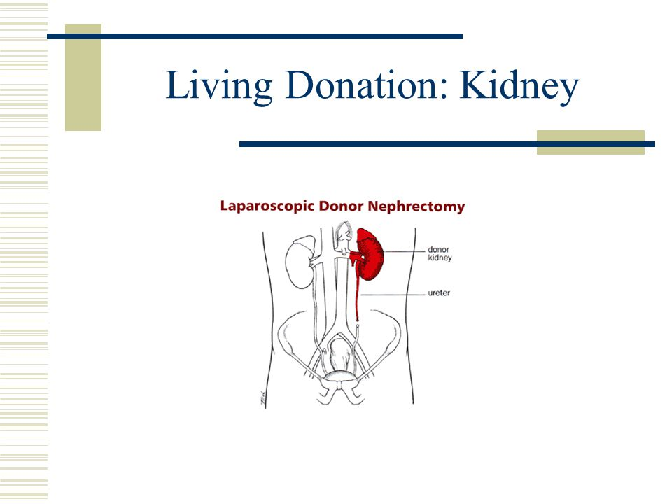 Living Donation  Pancreas (partial organ or islet cell donation; very rare)  Lung Lobe (2 adults donate one lobe each)  Intestine (very rare)