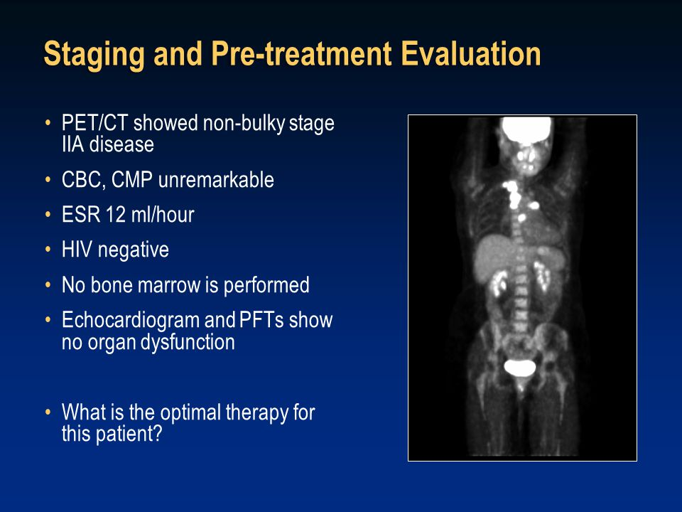 Staging and Pre-treatment Evaluation PET/CT showed non-bulky stage IIA disease CBC, CMP unremarkable ESR 12 ml/hour HIV negative No bone marrow is per