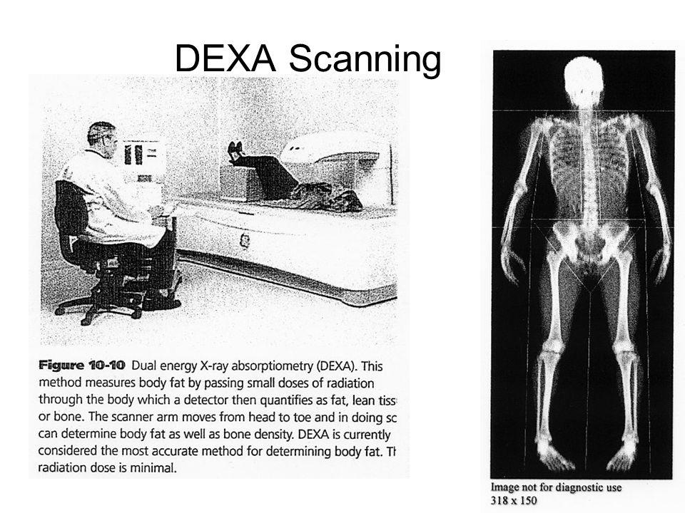 21 DEXA Scanning