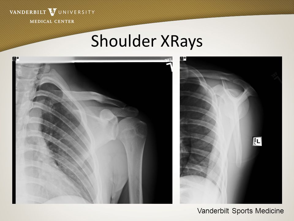 Vanderbilt Sports Medicine Shoulder XRays