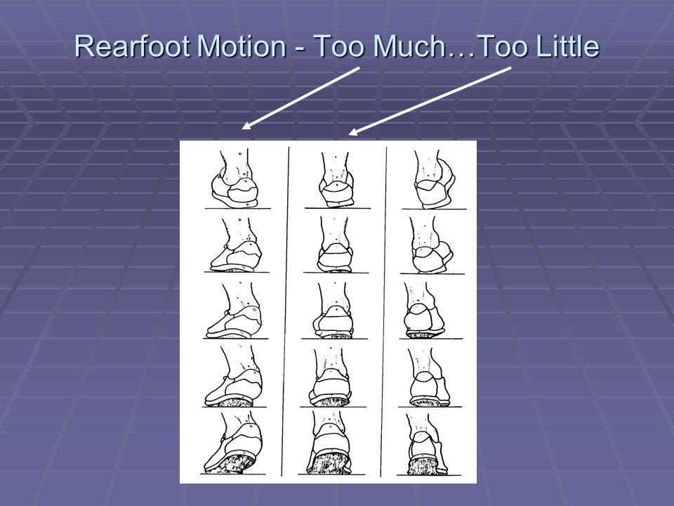 Rearfoot Motion - Too Much…Too Little