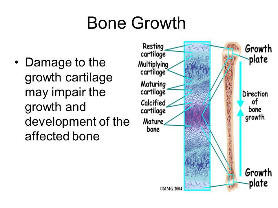 Bone Growth Damage to the growth cartilage may impair the growth and development of the affected bone