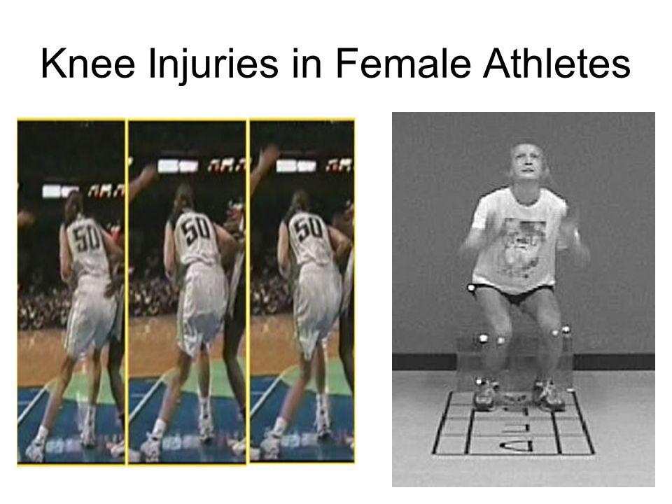 Knee Injuries in Female Athletes