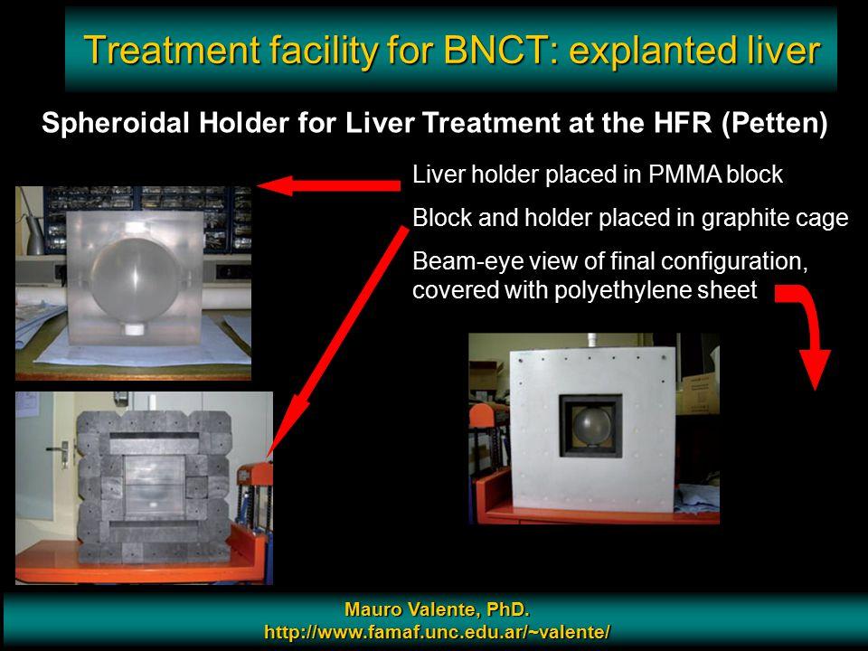Prof. Mauro Valente - CONICET & Universidad Nacional de Cordoba 12 Treatment facility for BNCT: explanted liver Mauro Valente, PhD. http://www.famaf.u