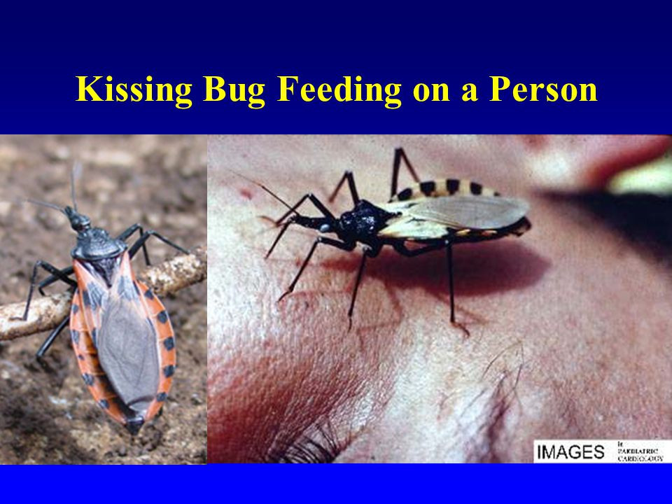 Kissing Bug Feeding on a Person