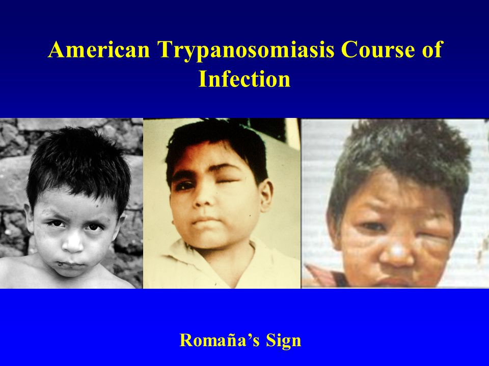 American Trypanosomiasis Course of Infection Romaña's Sign