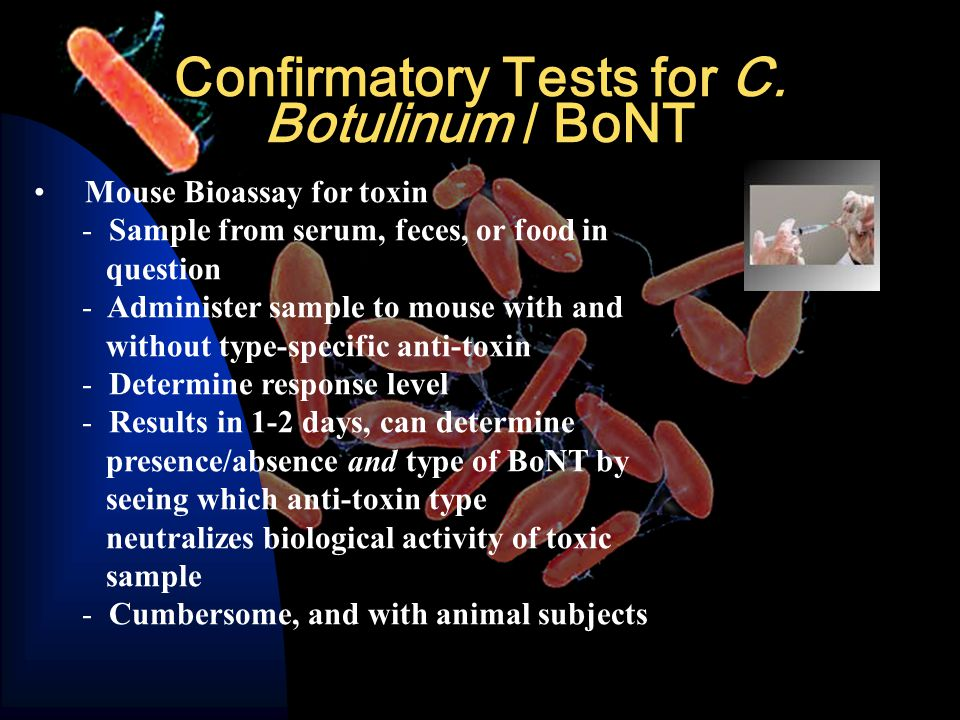 Confirmatory Tests for C.