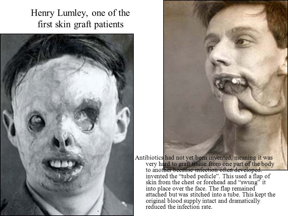 Henry Lumley, one of the first skin graft patients Antibiotics had not yet been invented, meaning it was very hard to graft tissue from one part of the body to another because infection often developed.