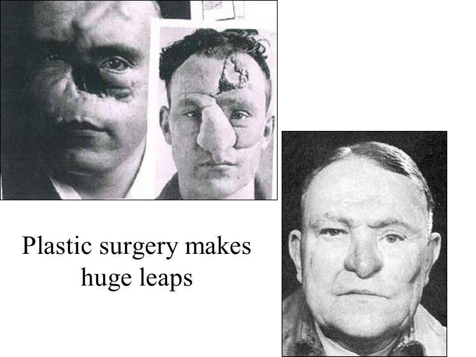 Plastic surgery makes huge leaps