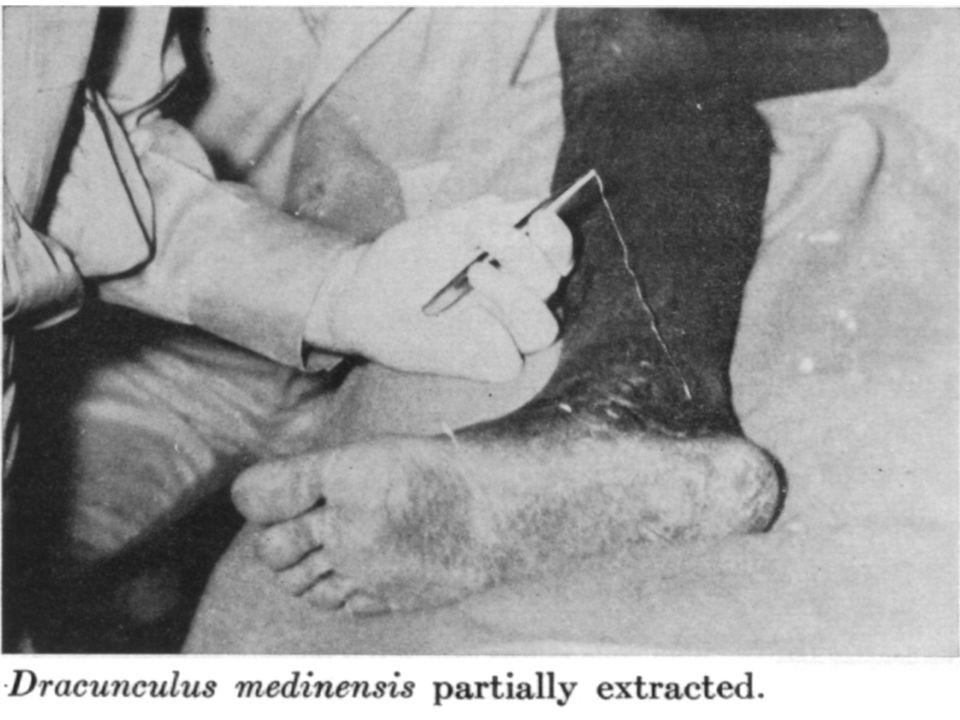 Dracunculus medinensis