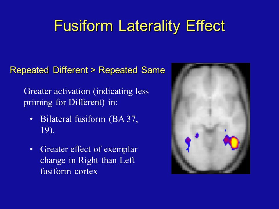 Fusiform Laterality Effect Repeated Different > Repeated Same Bilateral fusiform (BA 37, 19). Greater effect of exemplar change in Right than Left fus