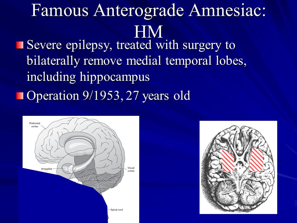 Famous Anterograde Amnesiac: HM Severe epilepsy, treated with surgery to bilaterally remove medial temporal lobes, including hippocampus Operation 9/1