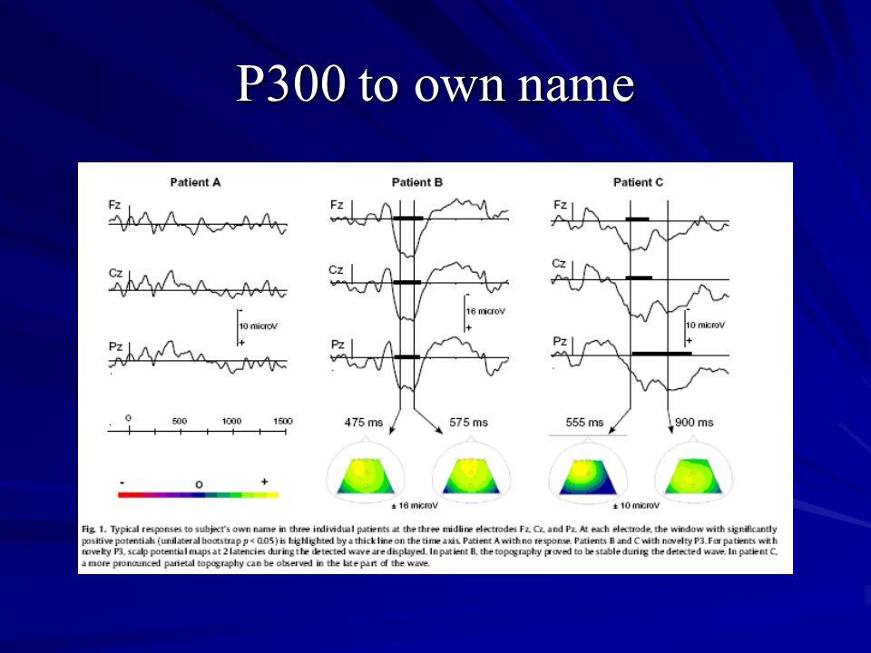 P300 to own name