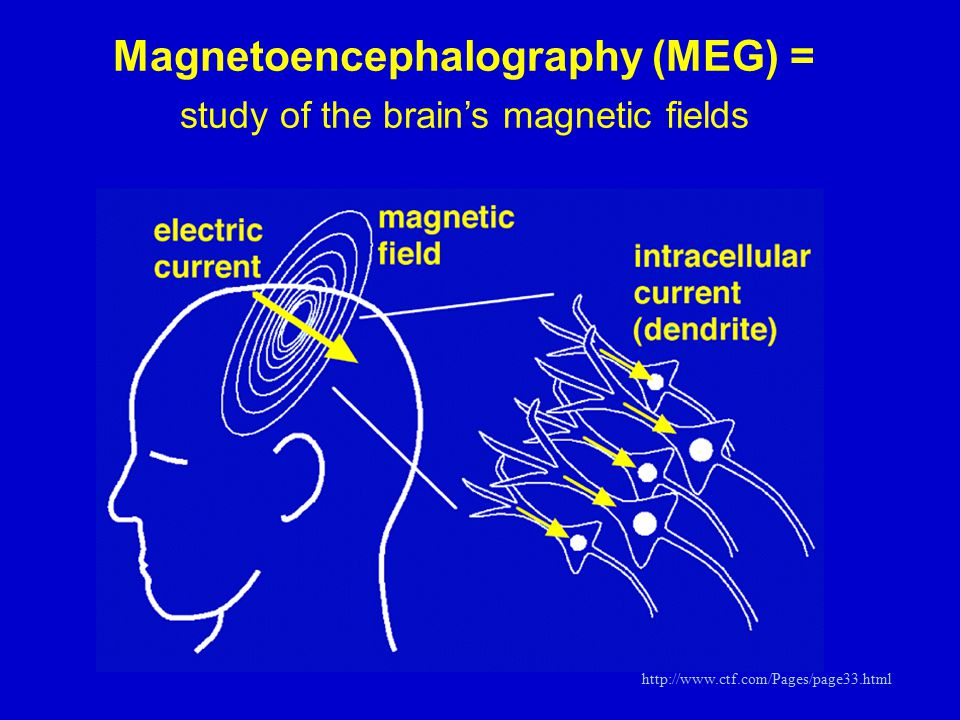 Magnetoencephalography (MEG) = study of the brain's magnetic fields http://www.ctf.com/Pages/page33.html