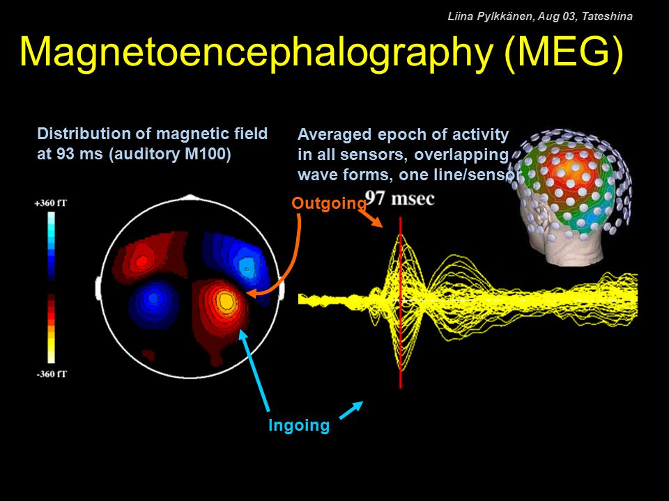 Magnetoencephalography (MEG) Distribution of magnetic field at 93 ms (auditory M100) Averaged epoch of activity in all sensors, overlapping wave forms, one line/sensor Outgoing Ingoing Liina Pylkkänen, Aug 03, Tateshina