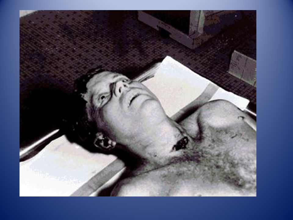 The post mortem or autopsy photo on the right shows the actual location of the bullet entry wound, as opposed to the official drawing on the left, whi