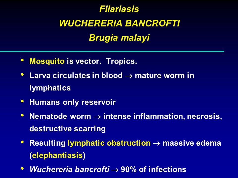 Filariasis WUCHERERIA BANCROFTI Brugia malayi Mosquito is vector.
