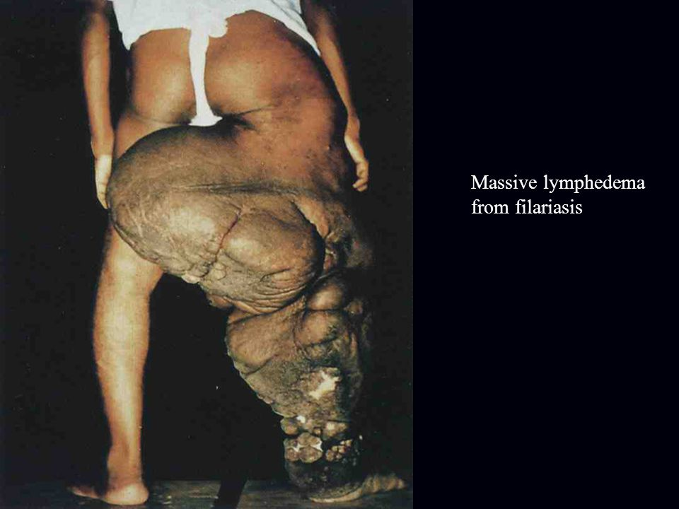 Massive lymphedema from filariasis