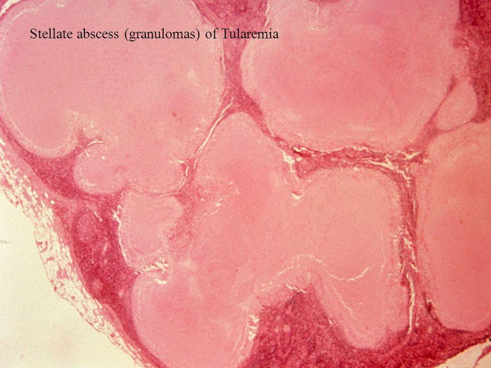 Stellate abscess (granulomas) of Tularemia