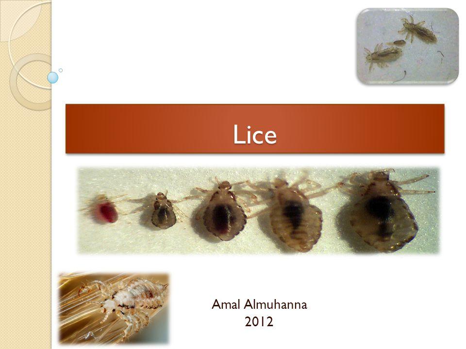 LiceLice Amal Almuhanna 2012