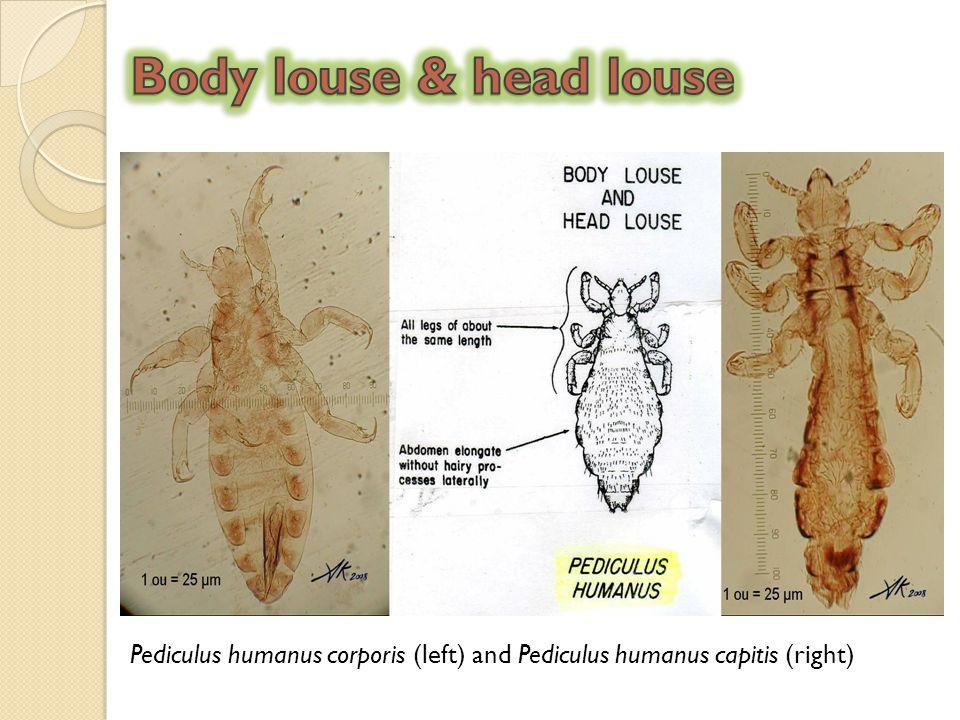 Pediculus humanus corporis (left) and Pediculus humanus capitis (right)