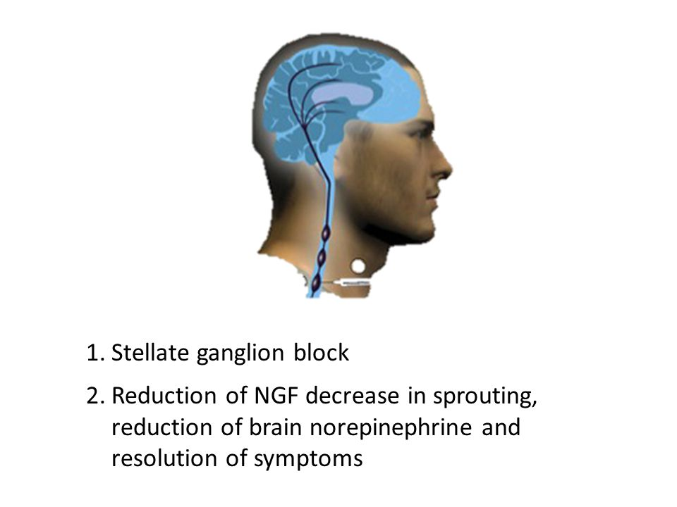 1.Stellate ganglion block 2.Reduction of NGF decrease in sprouting, reduction of brain norepinephrine and resolution of symptoms