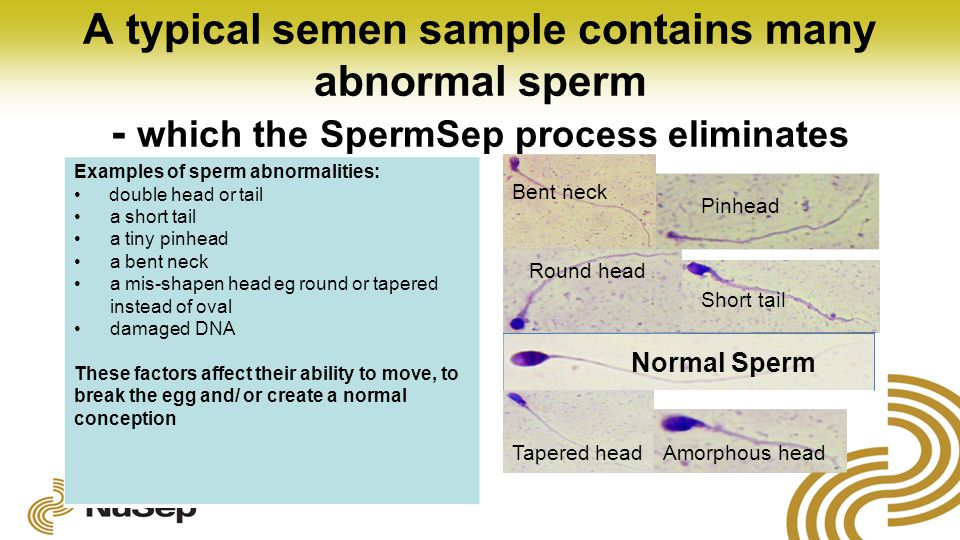 A typical semen sample contains many abnormal sperm - which the SpermSep process eliminates Examples of sperm abnormalities: double head or tail a short tail a tiny pinhead a bent neck a mis-shapen head eg round or tapered instead of oval damaged DNA These factors affect their ability to move, to break the egg and/ or create a normal conception Normal Sperm Short tail Round head Pinhead Tapered head Bent neck Amorphous head