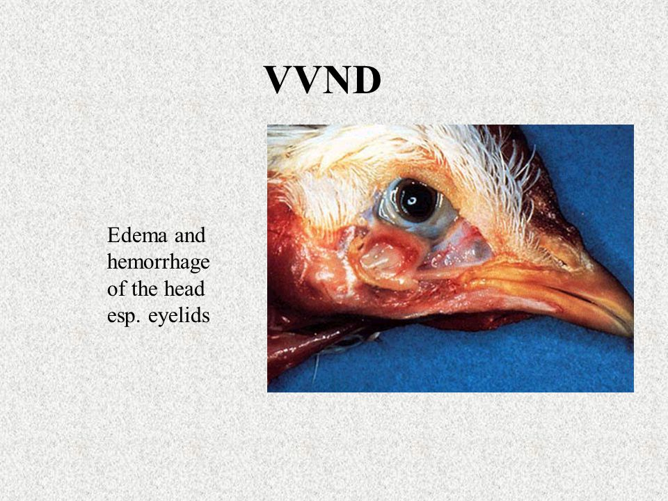 VVND Edema and hemorrhage of the head esp. eyelids