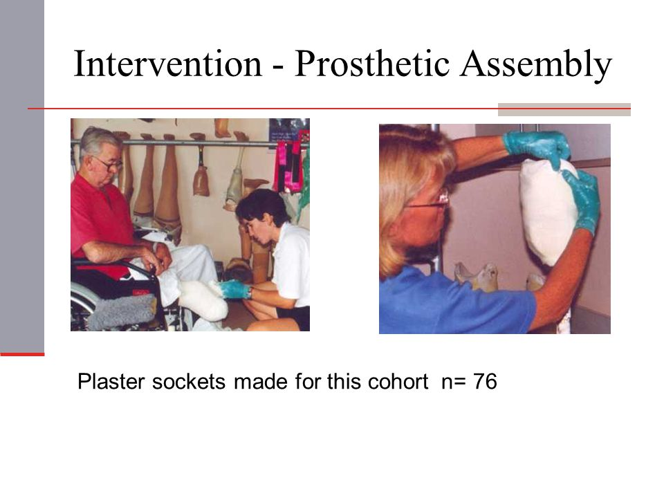 Intervention - Prosthetic Assembly Plaster sockets made for this cohort n= 76