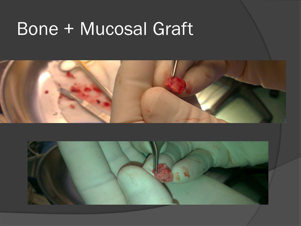 Bone + Mucosal Graft