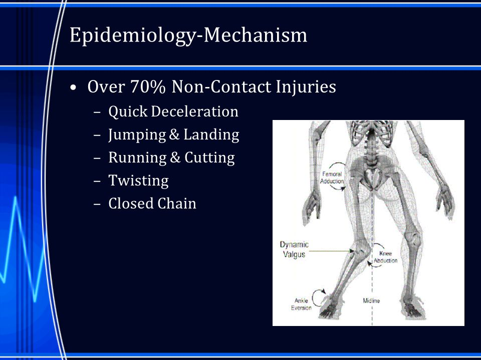 Future Direction Emory Sports Medicine will be setting up a new program on our website where people can input their features and get their own biomechanical analysis –Hopefully this can be used to identify those that are at risk and institute a training program