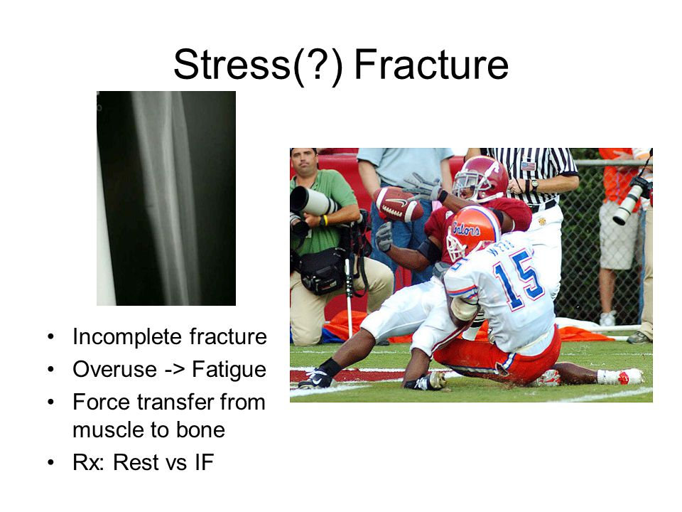 Stress(?) Fracture Incomplete fracture Overuse -> Fatigue Force transfer from muscle to bone Rx: Rest vs IF