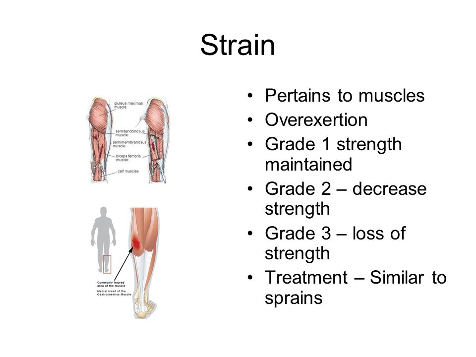 Strain Pertains to muscles Overexertion Grade 1 strength maintained Grade 2 – decrease strength Grade 3 – loss of strength Treatment – Similar to sprains