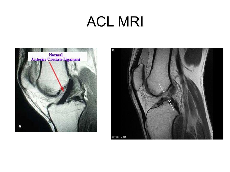 ACL MRI