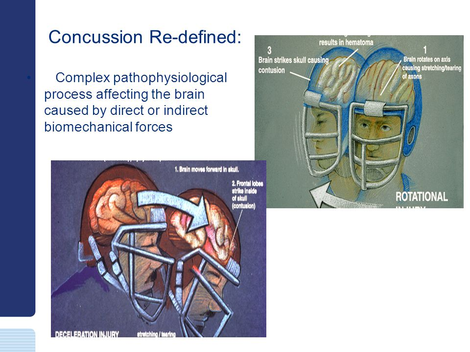 Concussion Re-defined: Typically results in the rapid onset of short-lived neurological impairment that resolves spontaneously
