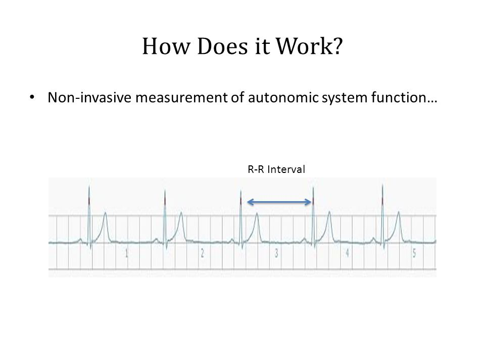 Non-invasive measurement of autonomic system function… How Does it Work? R-R Interval