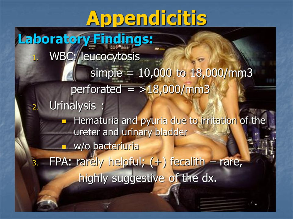 Appendicitis Laboratory Findings: 1.
