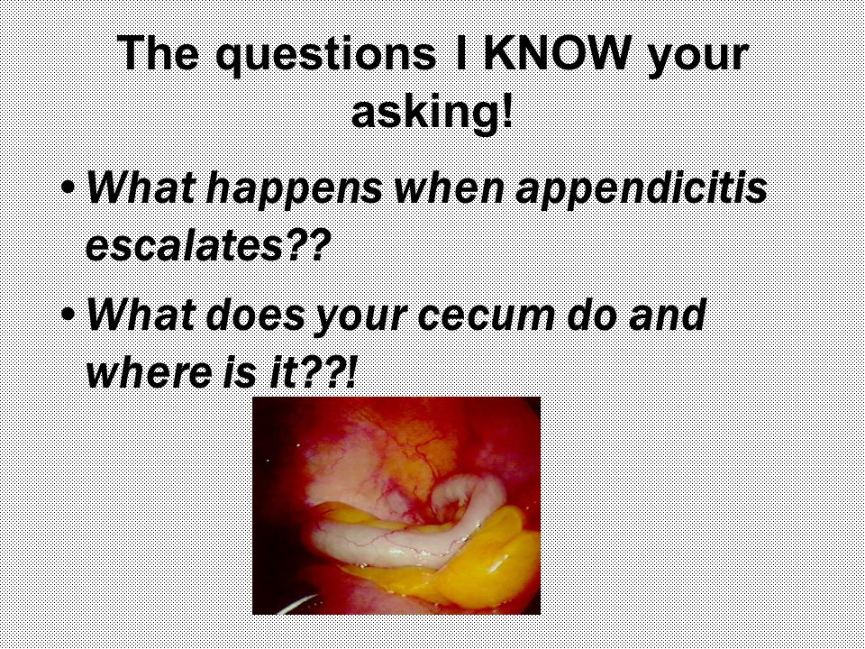 The questions I KNOW your asking.What happens when appendicitis escalates?.