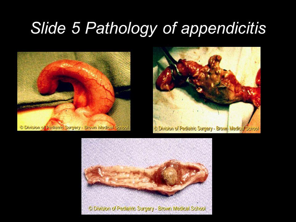 Slide 5 Pathology of appendicitis