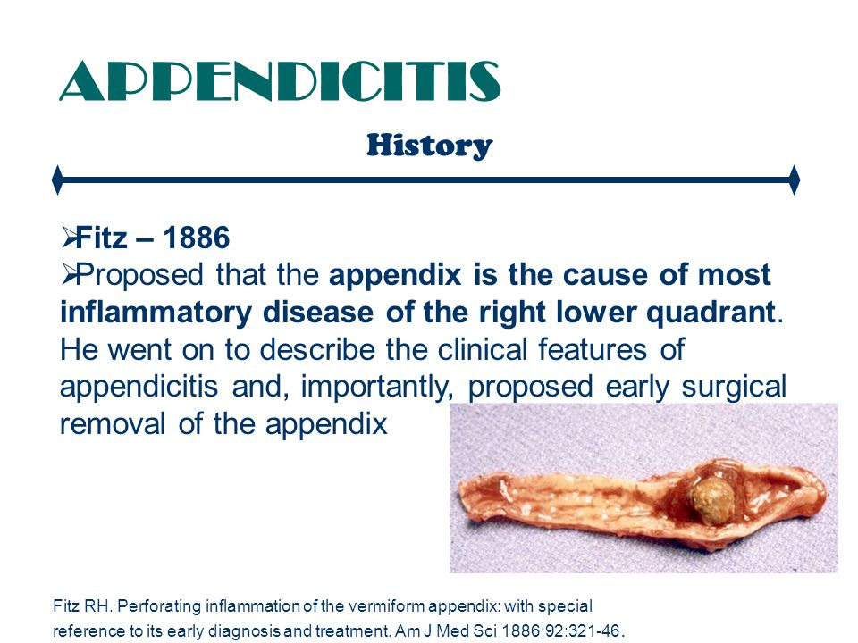 APPENDICITIS Perforation - Clinical Features  Occurs in 20%-30%  Longer duration of symptoms before presentation  Age 50yrs  Increasing abdominal pain (severity and sight)  Temperature > 38  The morbidity of a negative appendectomy is preferable to the morbidity of perforated appendicitis