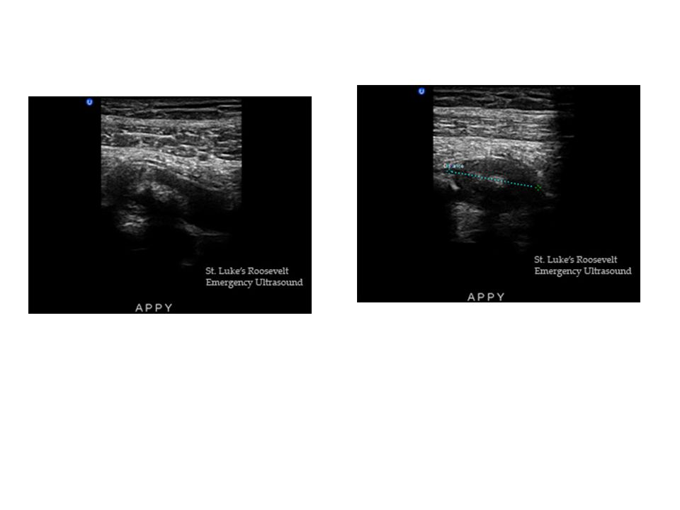 Per-cutaneous drainage of appendiceal abscess