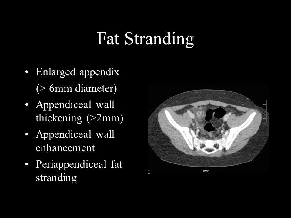 Fat Stranding Enlarged appendix (> 6mm diameter) Appendiceal wall thickening (>2mm) Appendiceal wall enhancement Periappendiceal fat stranding