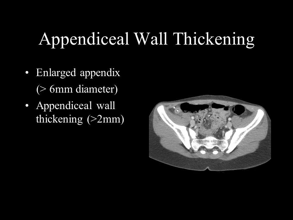 Appendiceal Wall Thickening Enlarged appendix (> 6mm diameter) Appendiceal wall thickening (>2mm)